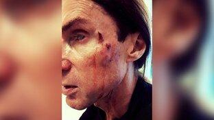 """Zanger Robby Valentine in elkaar geslagen: """"Uitgescholden voor zimmer en vieze flikker"""""""