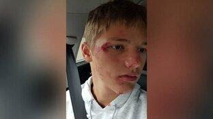Jongen (15) uit het niets van fiets getrapt door scooterrijder
